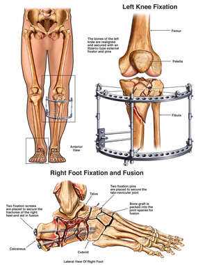 Surgical Fixation of Lower Body Fractures