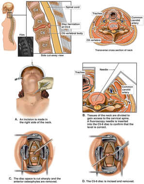 Cervical Spine Injury and Discectomy