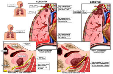 Progression of Tumor Mass within the Lung
