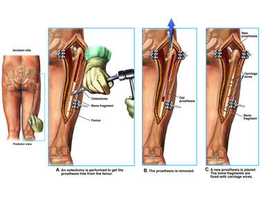 Surgical Removal and Replacement of Fractured Femoral Prosthesis