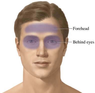 Sphenoid Sinusitis (Associated Regions of Pain)