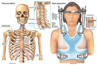 Female with Post-accident Neck Fractures and Spinal Stabilization Surgery with Halo Device