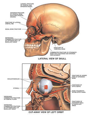 Post-accident Head and Orbit Injuries