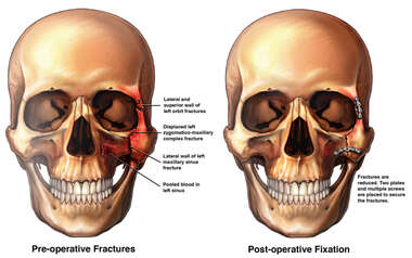 Facial Fractures with Subsequent Surgical Fixation