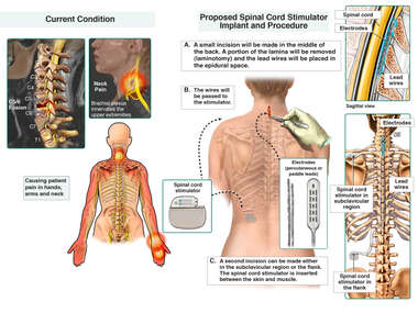 Pain Management with Spinal Cord Stimulator Implant
