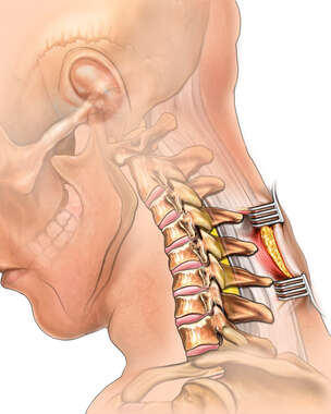 Posterior Cervical Incision