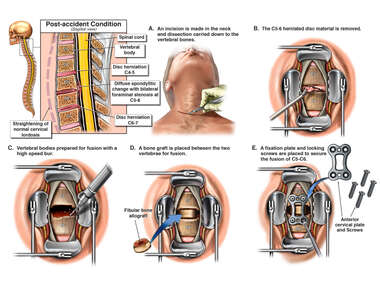 Cervical Spine Injuries with Anterior Cervical Fusion Surgery