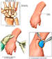 Right Wrist Injury with Surgical Excision of Ganglion Cyst