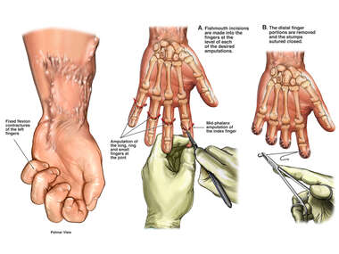 Fixed Flexion Contractures of the Left Fingers with Amputation Surgery
