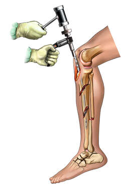 Nailing the Tibia - lateral view