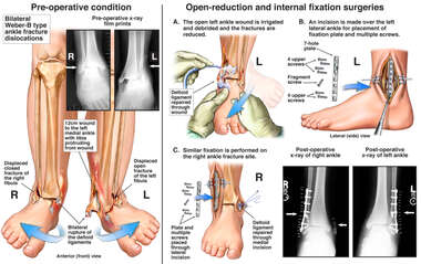 Bilateral Ankle Fracture and Surgical Fixation