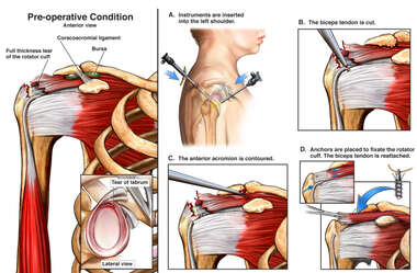 Right Shoulder Injuries with Arthroscopy/Open Shoulder Repair with Biceps Tenodesis