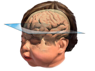Infant Axial Brain Orientation