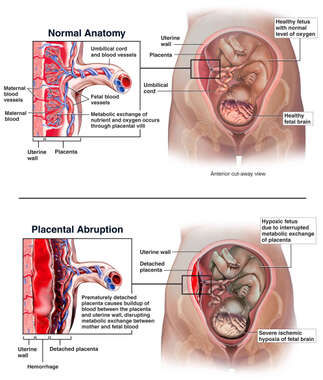 Intra-uterine Trauma with Subsequent  Placental Abruption and Hypoxia