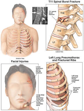 Male Torso with Post-accident Injuries to the Thoracic Spine, Face and Ribs