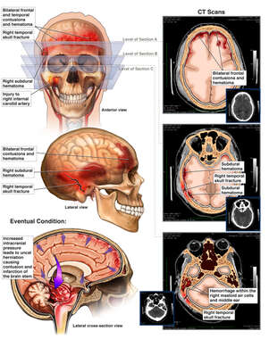 Blunt Trauma to the Head Resulting in Brain Damage