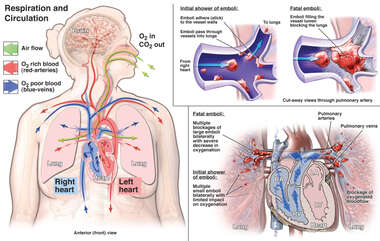 Fatal Bilateral Pulmonary Emboli