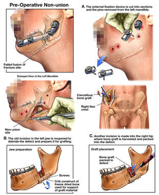 Additional Surgical Repairs with Bone Graft Reconstruction of the Left Jaw