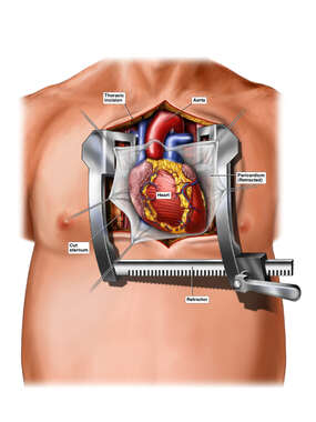 Surgical Exposure of the Heart and Aorta