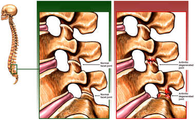 Progression of Facet Joint Degeneration Due to Disc Injury