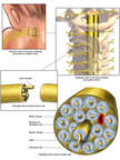 Anatomy of a Spinal Nerve in the Brachial Plexus