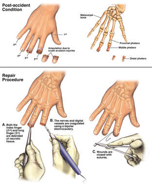 Traumatic Amputation of the Right Index and Long Fingers