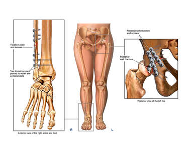 Female Lower Extremities with Post-operative Condition of the Right Ankle and Left Pelvis