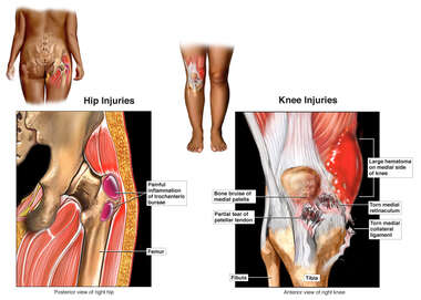 Hip and Knee Injuries