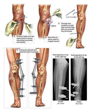 External Fixation of Bilateral Leg Fractures