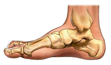 Hammer Toe: Medial View of the Foot