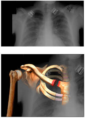 Clavicular Fracture