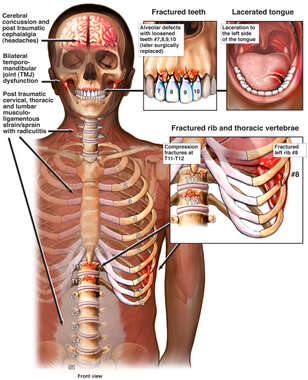 Traumatic Loss of Teeth with Blunt Force to Head and Torso