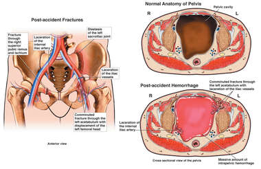 Severe Pelvic Injuries with Fatal Vascular Damage
