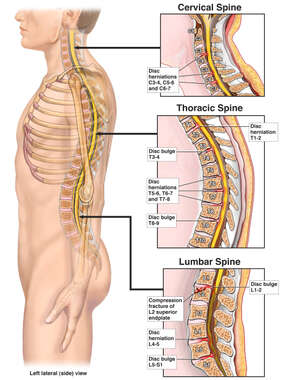 Lateral Male Figure with Injuries to the Cervical, Thoracic and Lumbar Spine