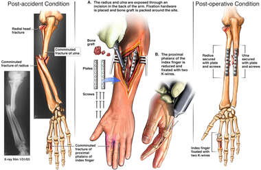 Ulnar and Radial Fractures with Surgical Repair