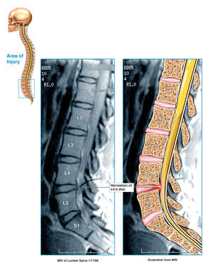 L4-5 Disc Herniation