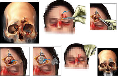 Post-accident Skull Fractures with Surgical Fixation