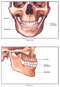 Anatomy of the Maxilla and Mandible (Jaw Bone)