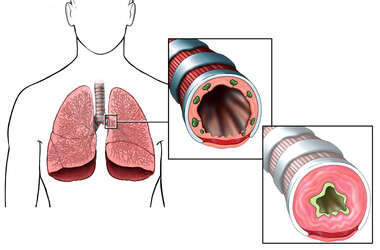 Asthma - Inflamed Bronchus