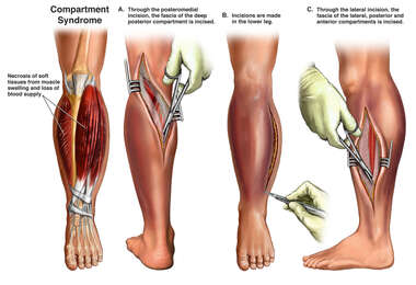 Compartment Syndrome with Fasciotomy of Left Leg