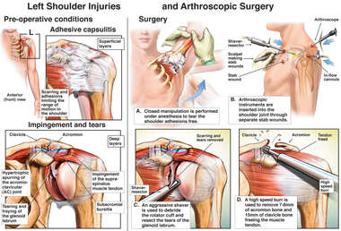 Left Shoulder Adhesive Capsulitis with Arthroscopic Repairs