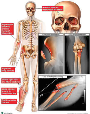 Male Skeletal Figure with X-Rays and Colorized Images of Fractures to the Orbit, Pelvis, Elbow and Right Lower Leg