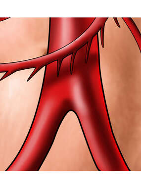 Bifurcation of Abdominal Aorta