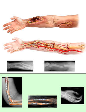 Right Arm Injuries and Surgical Fixation