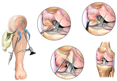 Arthroscopic Medial Meniscectomy