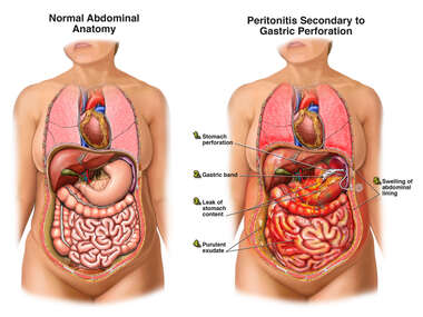 Peritonitis Secondary to Gastric Perforation
