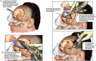 Frontal Craniotomy, Removal of Posterior Frontal Sinus