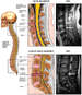 Post-accident Cervical and Lumbar Spinal Disc Injuries and Films