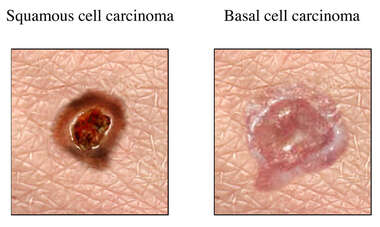 Skin Cancer: Non-Melanoma