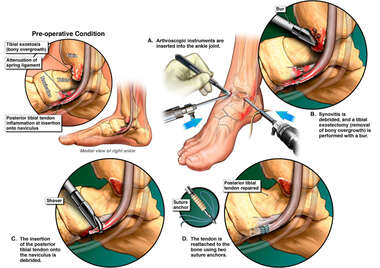 Right Ankle Injuries and Surgery